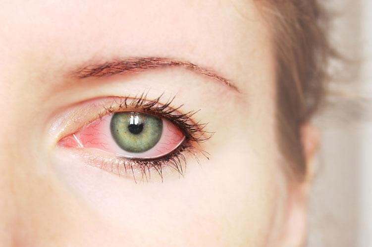 red eye conjunctivities